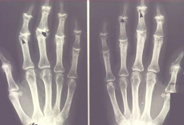 Consejos de salud: artrosis
