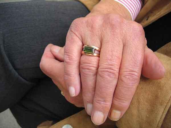 El Sureste celebra una jornada sobre tratamiento de la patología renal en ancianos