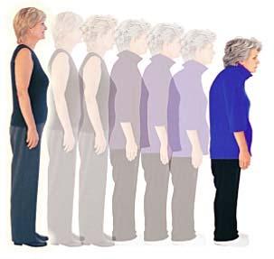 Los suplementos de vitamina D y calcio y la osteoporosis